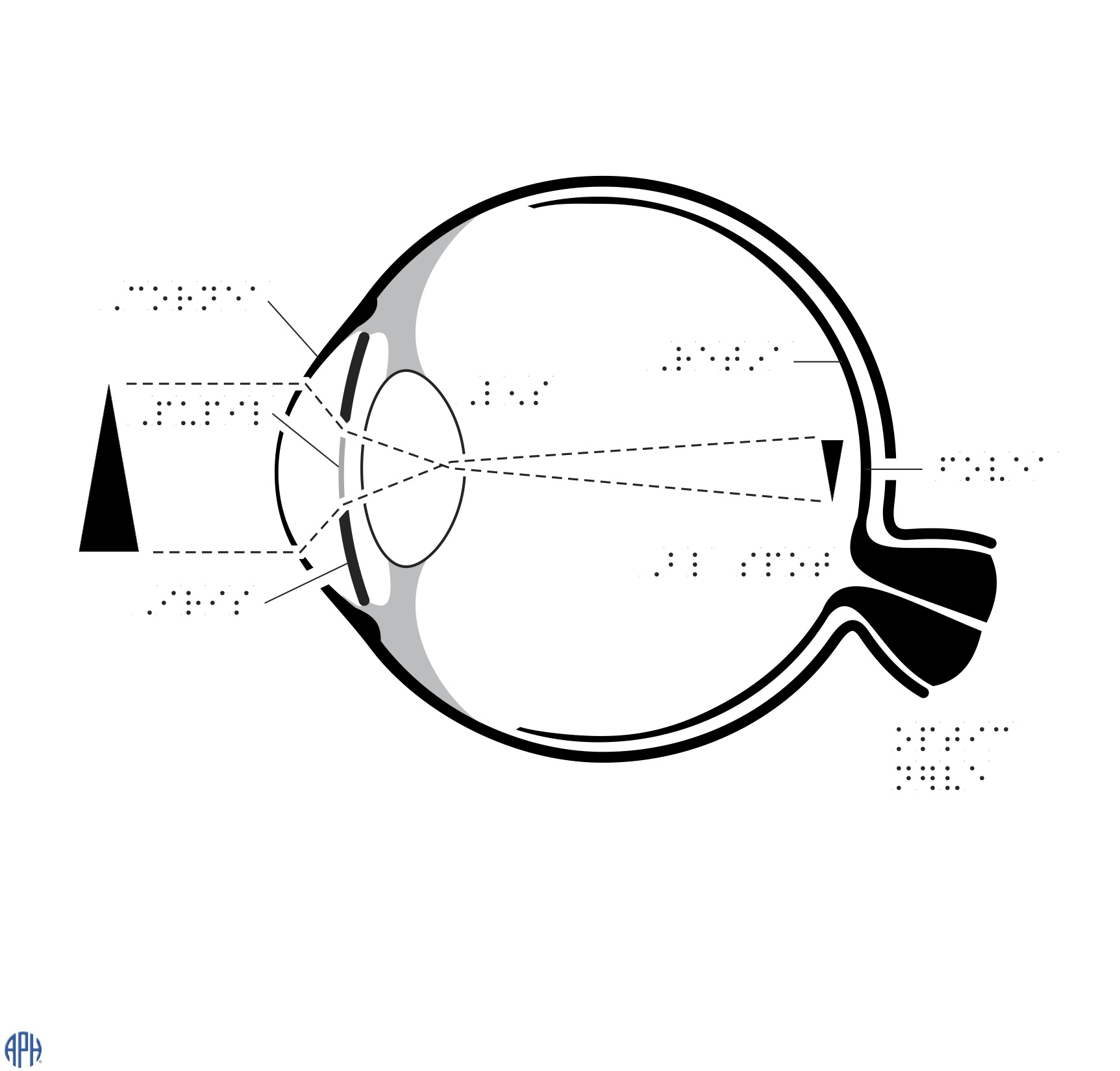 Braille labelled sketch of an eye with the pupil, lens, iris, cornea, optic nerve, shows how an image is inverted at the back of the retina.