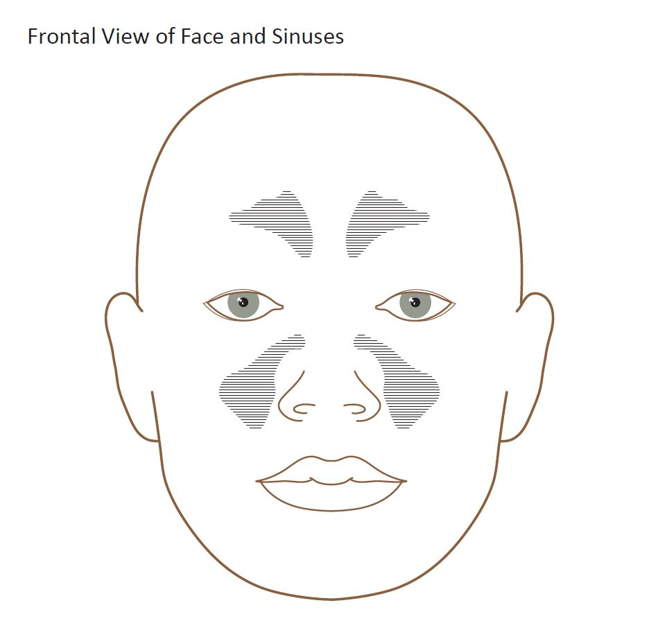 Diagram of a human face with visible sinus cavities that are symmetric around the nose and on the forehead.